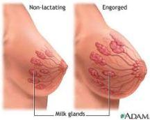 obat kelenjar di payudara